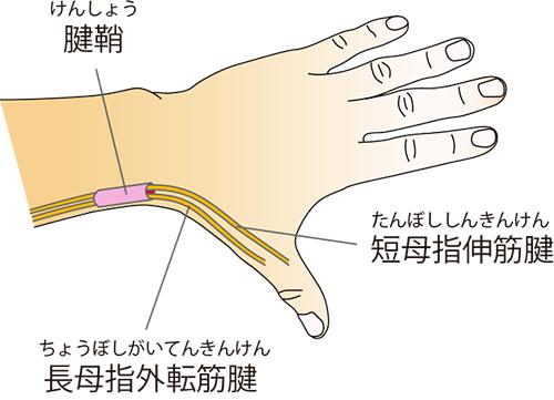 手の親指が痛くて夜も眠れません(ドケルバン病、母指CM関節症)「お灸の治療とセルフケア- 3」 | 事務局ブログ 森からの便り